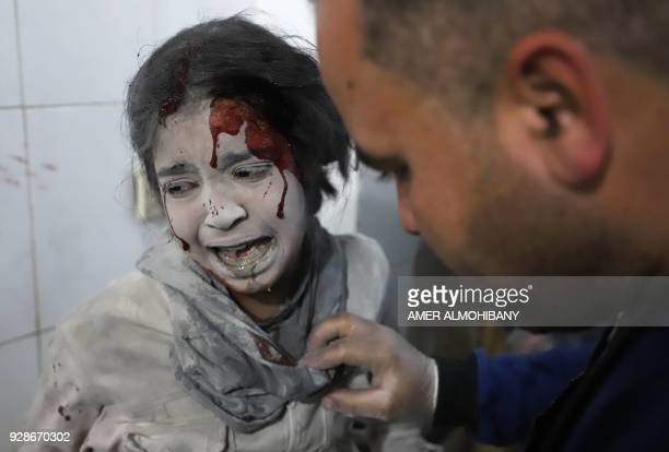 Graphic content / A Syrian girl receives treatment as victims of reported regime air strikes on Hamouria Saqba and Kafr Batna are brought to a...