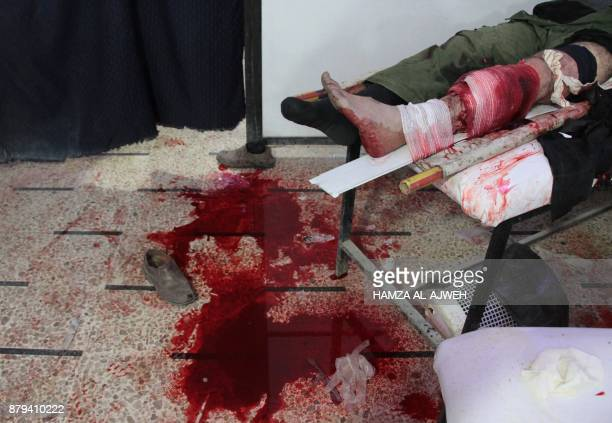 Graphic content / A Syrian man receives medical attention at a makeshift clinic following a reported airstrike by Syrian government forces in the...