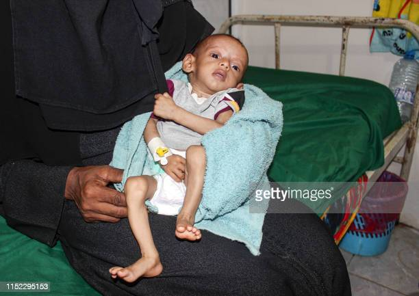 Graphic content / A woman holds a malnourished child receiving treatment at a hospital in the Yemeni port city of Hodeida on June 27 2019