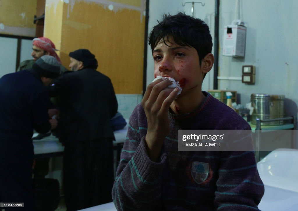 Graphic content / A wounded Syrian boy cries as he waits for medical help at a makeshift hospital following air strikes by regime forces in the rebel-held town of Douma, in the besieged Eastern Ghouta region on the outskirts of the capital Damascus, on February 23, 2018. Syrian regime air strikes and artillery fire hit the rebel-held enclave of Eastern Ghouta for a sixth straight day killing dozens of civilians, as the world struggled to reach a deal to stop the carnage. /
