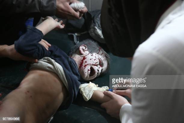 Graphic content / A wounded Syrian boy receives treatment at a makeshift hospital following reported government bombardments on the rebelheld town of...