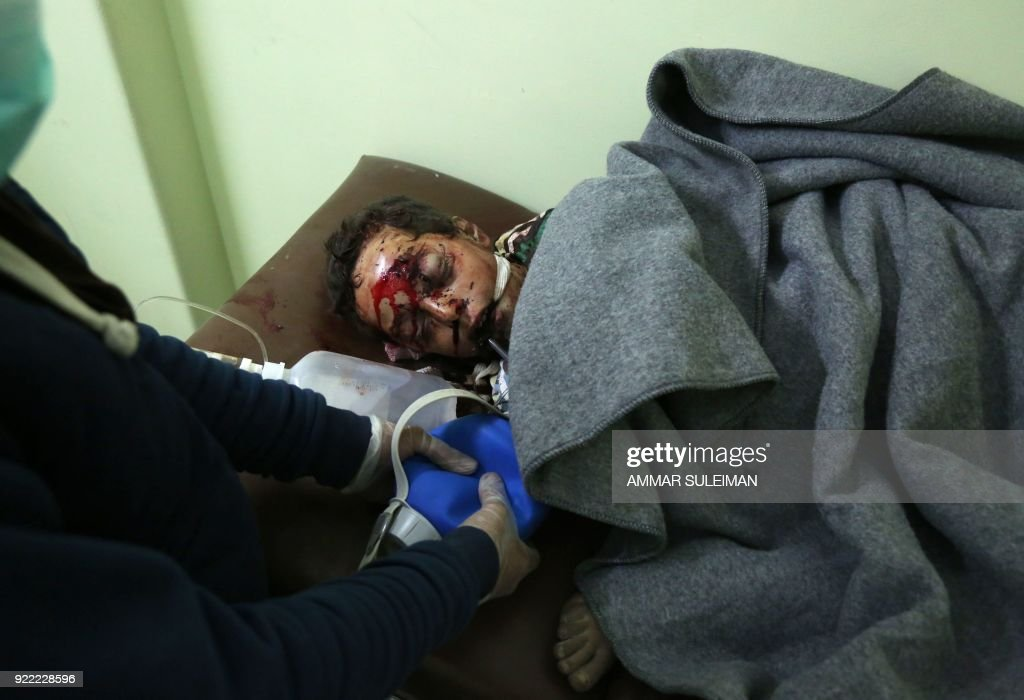 Graphic content / A wounded Syrian child receives treatment at a make-shift hospital in Kafr Batna following Syrian government bombardments on the besieged Eastern Ghouta region on the outskirts of the capital Damascus on February 21, 2018. Syrian jets carried out more deadly raids on Eastern Ghouta as Western powers and aid agencies voiced alarm over the mounting death toll and spiralling humanitarian catastrophe. PHOTO / Ammar SULEIMAN