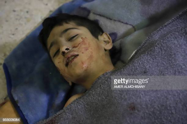 Graphic content / A wounded Syrian child rests after receiving treatment at a makeshift clinic during Syrian government air strikes on Zamalka in the...