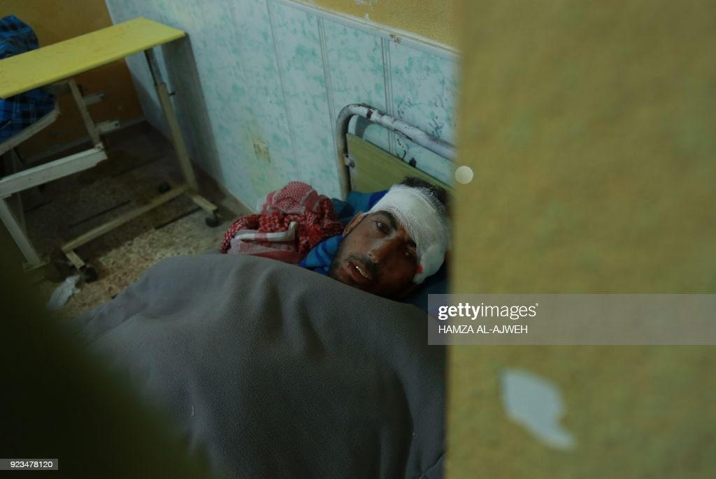 Graphic content / A wounded Syrian is pictured at a makeshift hospital in the rebel-held town of Douma, in the besieged Eastern Ghouta region on the outskirts of the capital Damascus, following air strikes by regime forces on the area on February 23, 2018. Syrian regime air strikes and artillery fire hit the rebel-held enclave of Eastern Ghouta for a sixth straight day killing dozens of civilians, as the world struggled to reach a deal to stop the carnage. /