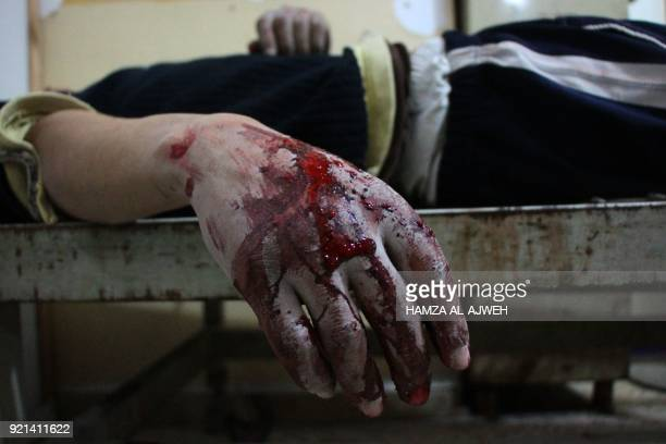 Graphic content / A wounded Syrian lies on a gurney inside a makeshift hospital in the rebelheld town of Douma following air strikes by regime forces...