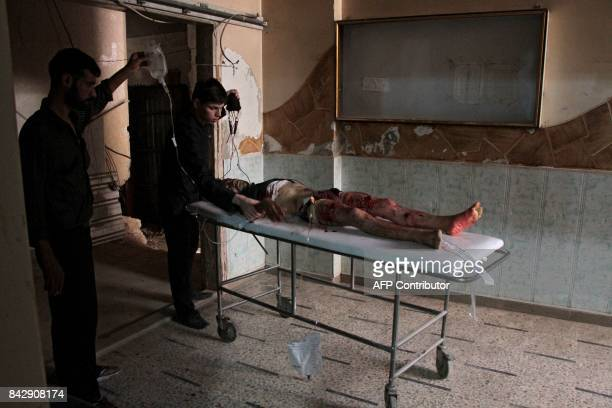 Graphic content / A wounded Syrian man lies on a stretcher at a makeshift hospital in the rebel-held town of Masraba, east of Douma in eastern...
