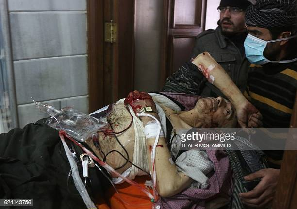 Graphic content / A wounded Syrian man receives treatment at a crowded makeshift hospital in eastern Aleppo as regime aircraft and artillery pounded...
