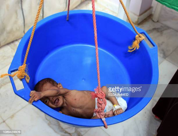 Graphic content / A Yemeni child suffering from severe malnutrition is weighed at a hospital in Yemen's northwestern Hajjah province on January 26...