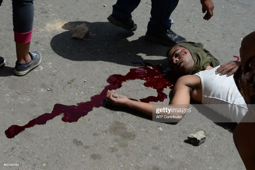 Graphic content / A young man lies on a pool of his own blood during lootings in Maracay, Venezuela on June 27, 2017. / AFP PHOTO / Federico Parra / GRAPHIC