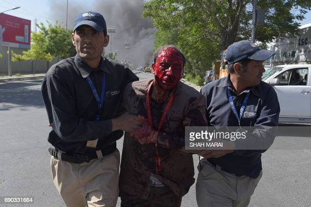 Graphic content / Afghan men assist a wounded man at the site of a car bomb attack in Kabul on May 31 2017 A massive blast rocked Kabul's diplomatic...