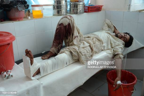 Graphic content / An Afghan victim receives treatment at a hospital following a suicide attack in Mohmand Dara district of Nangarhar Province on...