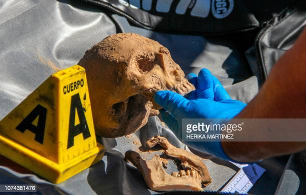 Graphic content / An expert of the Crime Scene Special Unit of the Forensic Services and Forensic Sciences Laboratory of the General Prosecutor's...