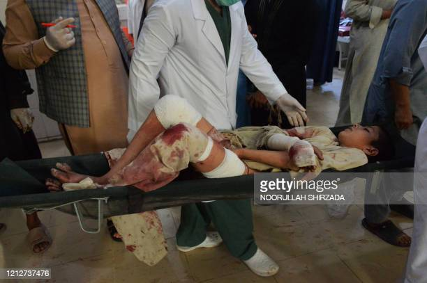 Graphic content / An injured boy is carried on a stretcher in a hospital following a suicide attack at a funeral of a local police commander in...