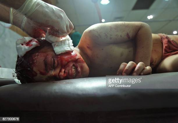 Graphic content / An injured Syrian child receives treatment at a makeshift hospital in Jobar on August 5 following a reported government airstrike...
