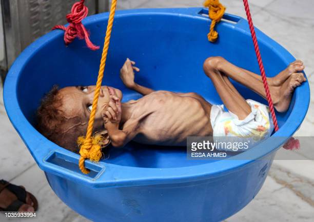 Graphic content / A Yemeni child suffering from malnutrition is weighed at a hospital in the northern district of Abs in the northwestern Hajjah...