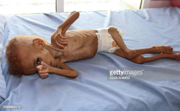 Graphic content / Bassem Mohamed Hassan a twoyearold Yemeni boy suffering from malnutrition lies on a bed at a hospital in the northern district of...