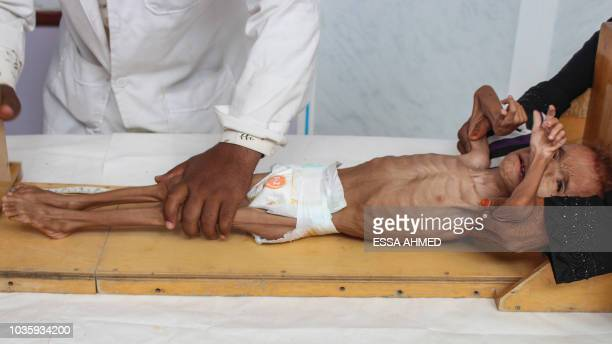 Graphic content / Bassem Mohamed Hassan a twoyearold Yemeni boy suffering from malnutrition has his height measured at a hospital in the northern...