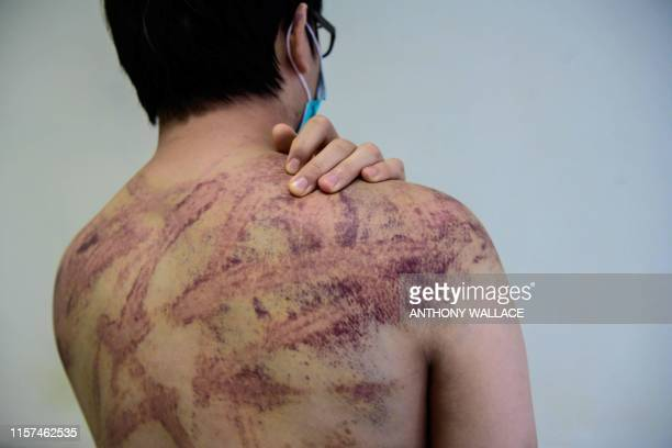 Graphic content / Calvin So a resident of the rural town of Yuen Long near the border with mainland China, shows his wounds and bruises in a hospital...