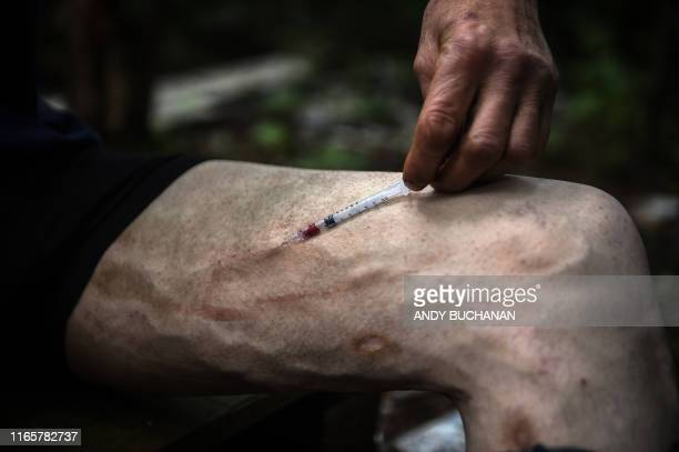 Graphic content / Drug addict Michael injects cocaine into a vein in his leg in a small wooded area used by addicts to take drugs near Glasgow city...