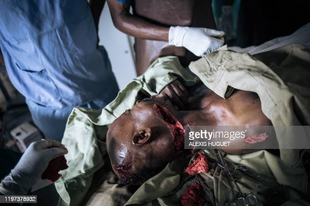 Graphic content / Kahese Kasereka is treated at Oicha Hospital after being seriously injured during an attack by unknown assailants in a nearby...