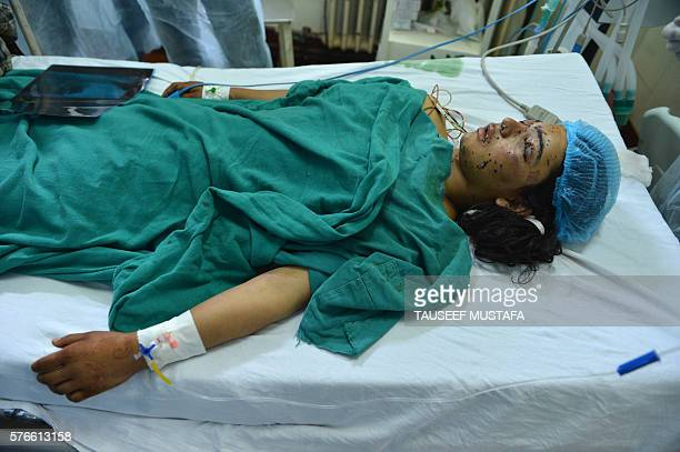 Graphic content / Kashmiri girl Insha Malik lays in a hospital bed after being shot with pellets fired by Indian security forces, with doctors saying...