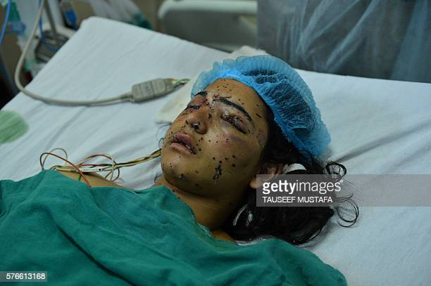 Graphic content / Kashmiri girl Insha Malik lays in a hospital bed after being shot with pellets fired by Indian security forces with doctors saying...
