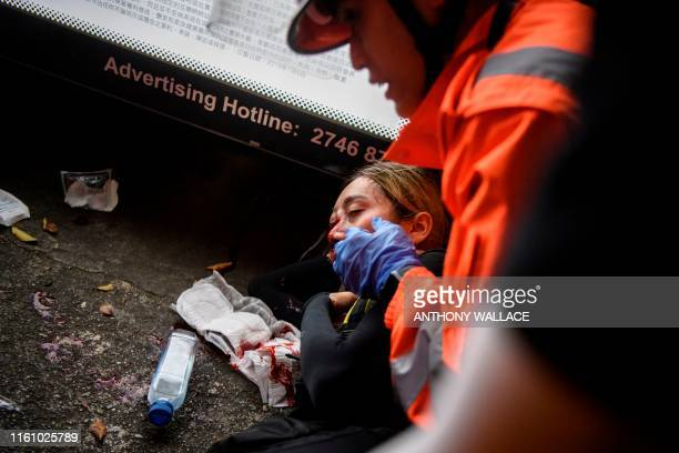 Graphic content / Medics look after a woman who received a facial injury during a standoff between protesters and police in Tsim Sha Tsui in Hong...