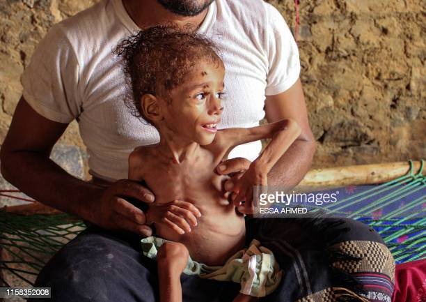 Graphic content / Moaz Ali Mohammed a twoyearold Yemeni boy from an impoverished family in the Bani Amer region who suffers from acute malnutrition...