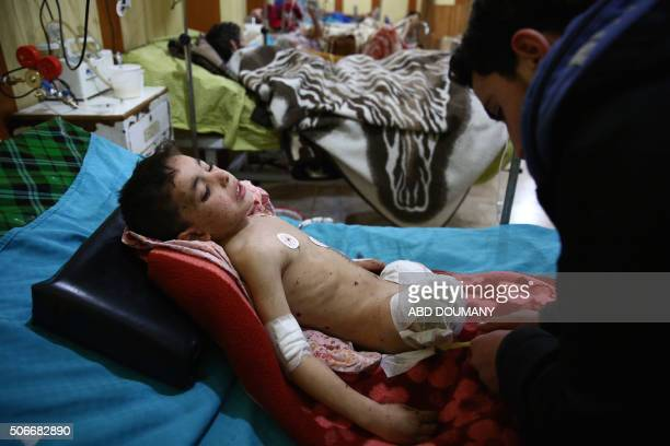 Graphic content / Nureldine alTout a five year old Syrian boy who recently lost his legs in a barrel bomb attack prepares to leave the hospital to...