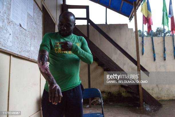 Graphic content / Okule Mokube Kingsley, a 32 years old refugee who fled Bwiku, where he has been beaten by a group of armed men, and then doused...