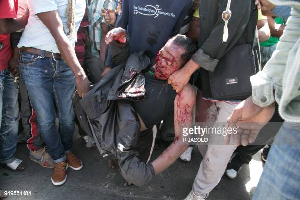 Graphic content / People carry a man shot in the back of the head during clashes with police during a opposition demonstration against a draft...