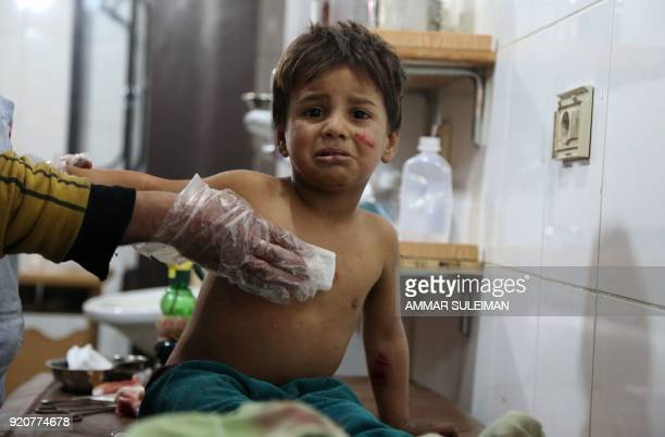 Graphic content / Syrian Mohammed cries as he receives treatment at a makeshift hospital in Kafr Batna after being wounded with his mother in...