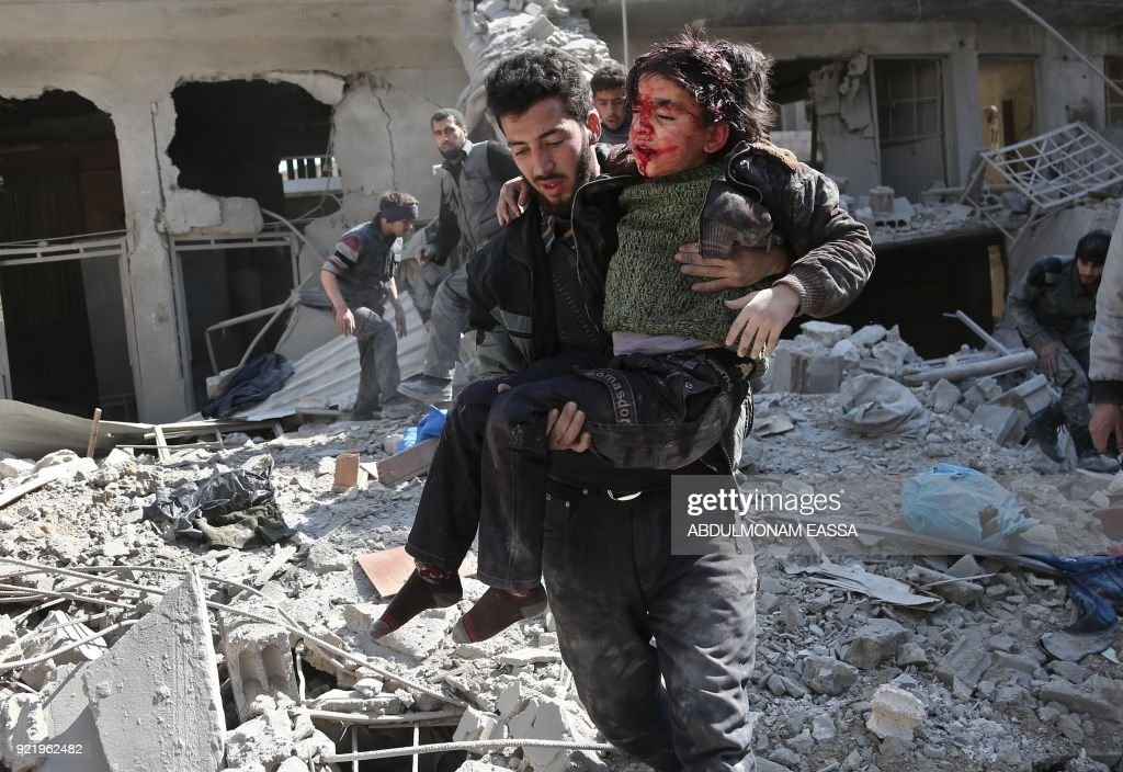 Graphic content / Syrians rescue a child following a reported regime air strike in the rebel-held town of Hamouria, in the besieged Eastern Ghouta region on the outskirts of the capital Damascus on February 21, 2018. /