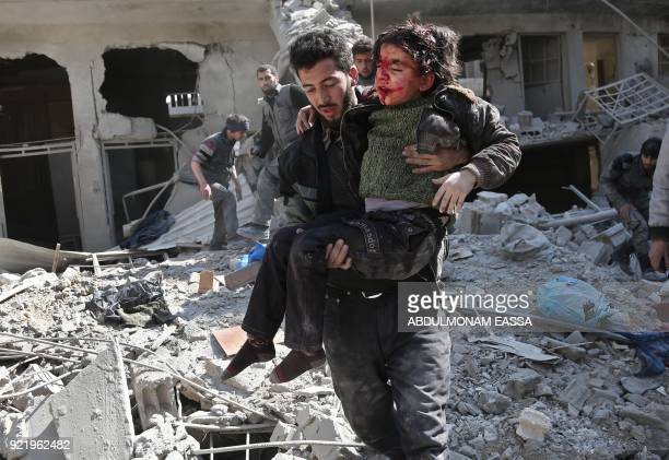 Graphic content / Syrians rescue a child following a reported regime air strike in the rebelheld town of Hamouria in the besieged Eastern Ghouta...