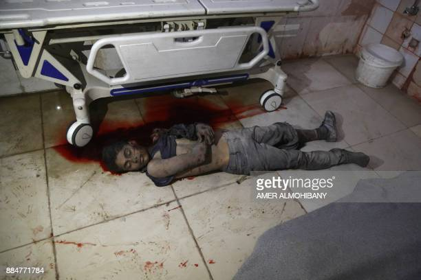 Graphic content / The body of a child lies on the ground at a makeshift hospital following a reported air strike in the rebelcontrolled town of...