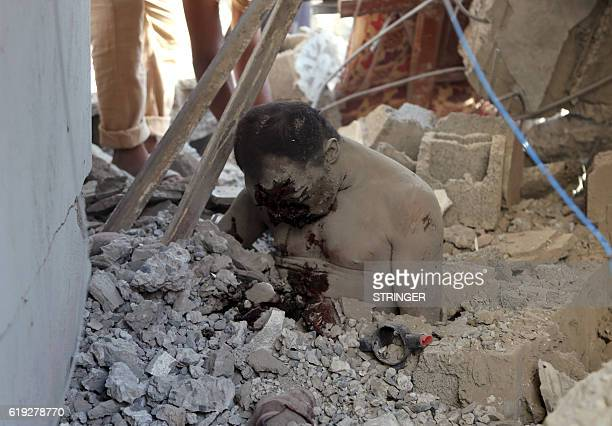 Graphic content / The body of a man is seen half buried under the rubble at a detention centre hit by Saudiled coalition air strikes in alZaidia...