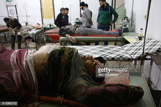 Graphic content / The body of a man is seen on a stretcher at a makeshift hospital following a reported airstrike on the besieged rebelcontrolled...