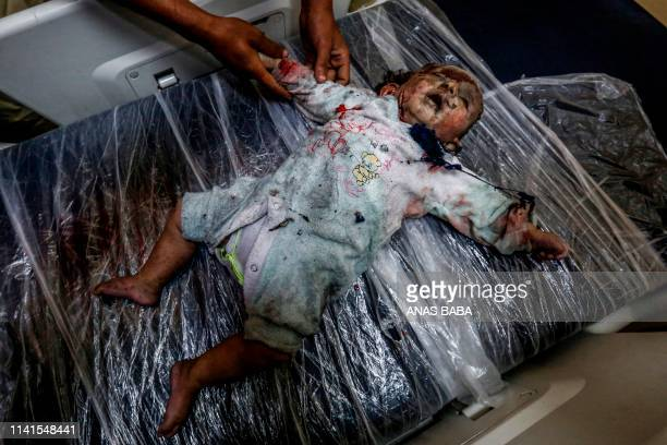 Graphic content / The body of Maria alGazali a Palestinian girl lies on a bed at a hospital in Beit Lahia in the northern Gaza Strip on May 5 2019...