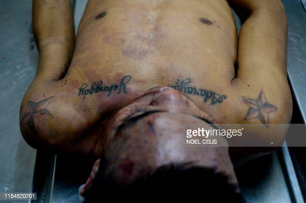 Graphic content / This photo taken on July 6 the body of Ricky Adarayan who was abducted on July 4 and was found dead dumped along a street in...
