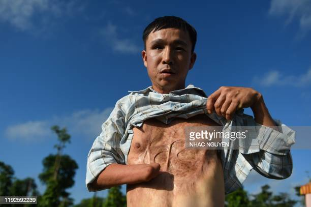 Graphic content / This picture taken on January 6 2020 shows landmine victim Nguyen The Nghia displaying his wounds as a result of a munitions...