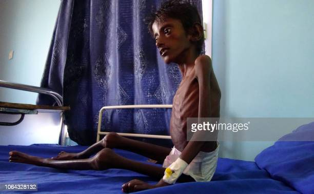 Graphic content / This picture taken on November 22 2018 shows Abdelrahman Manhash a fiveyearold Yemeni boy suffering from severe malnutrition and...