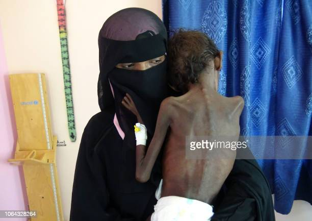 Graphic content / This picture taken on November 22 2018 shows Yemeni mother Nadia Nahari holding her fiveyearold son Abdelrahman Manhash who is...