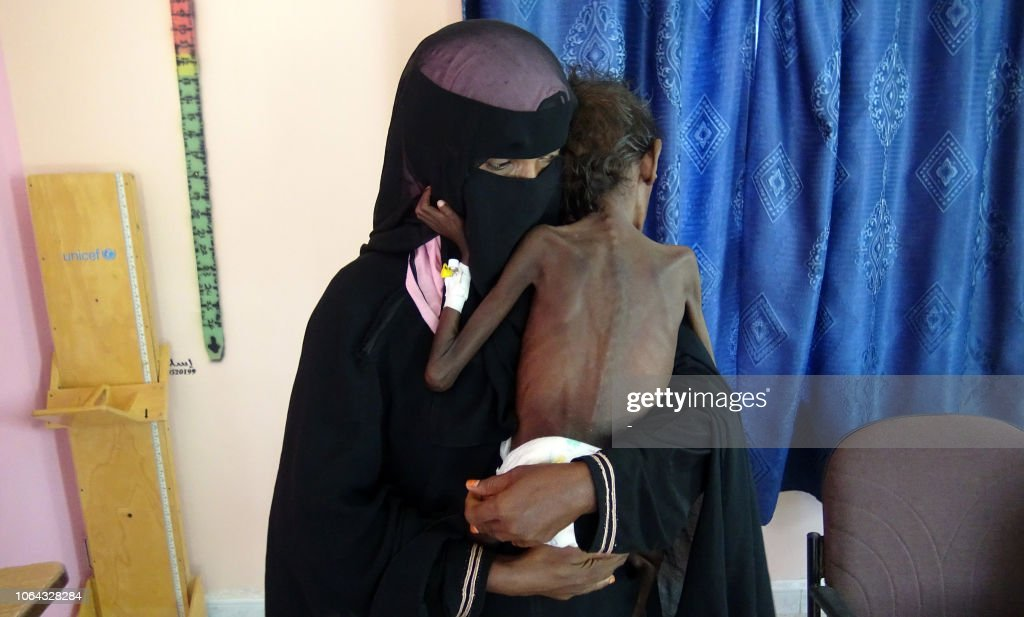YEMEN-CONFLICT-MALNUTRITION : News Photo