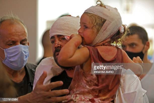 Graphic content / Wounded people are treated at a hospital following an explosion near the port in the Lebanese capital Beirut on August 4, 2020. -...