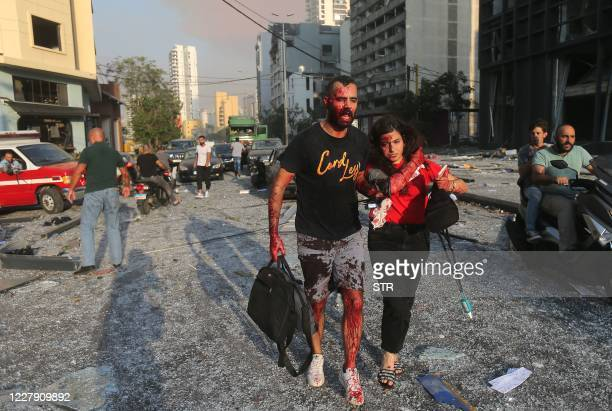 Graphic content / Wounded people walk near the site of an explosion at the port in the Lebanese capital Beirut on August 4, 2020. - Two huge...