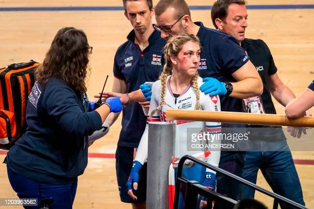 TOPSHOT Great Britain's Laura Kenny is helped of the track after a crash during the Women's scratch race at the UCI track cycling World Championship...