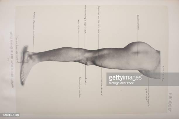 Great trochanter crest of the ilium anterior superior spine of the ilium vastus externus patella tuberosity of the tibia extensor brevis digitorum...