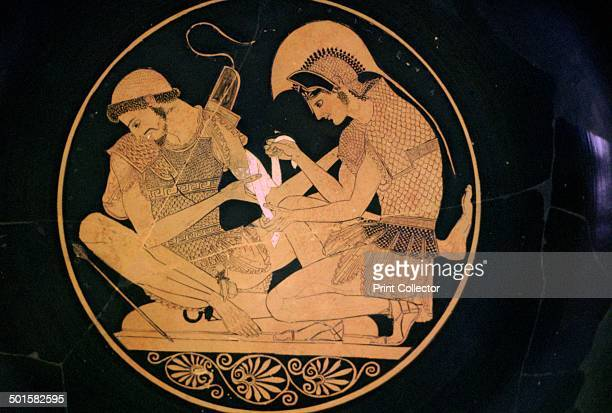 A Greek vase painting of Achilles and Patroclus where Achilles is binding the wounds of Patroclus Currently in the Berlin Greek and Roman Museum