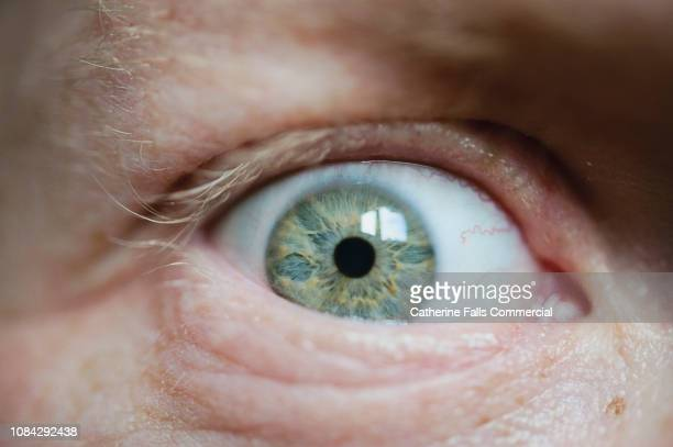 green eye - cellulitis stock photos and pictures
