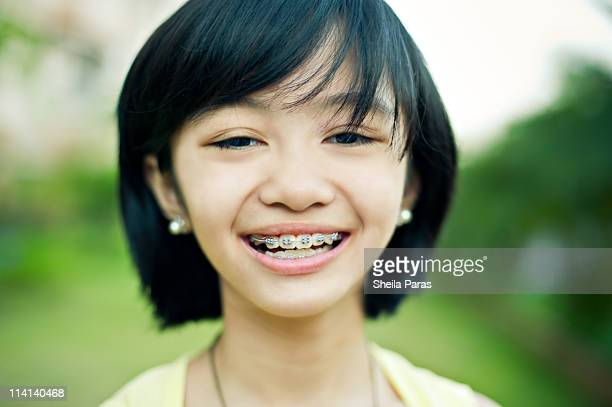grinning girl with braces - suspenders stock pictures, royalty-free photos & images